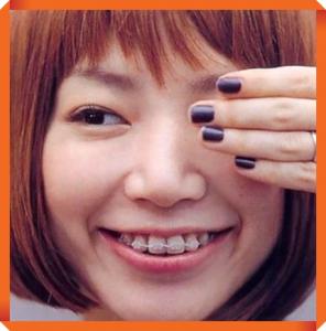 歯列矯正器具