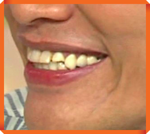 遠藤憲一 歯