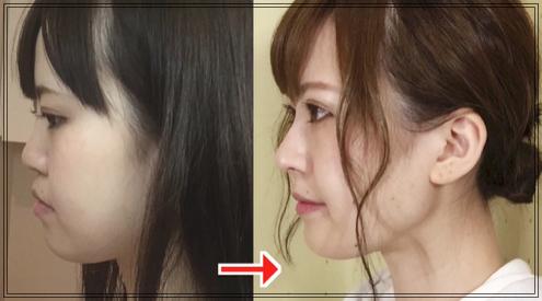 メンヘラ整形アイドル轟ちゃん youtuber
